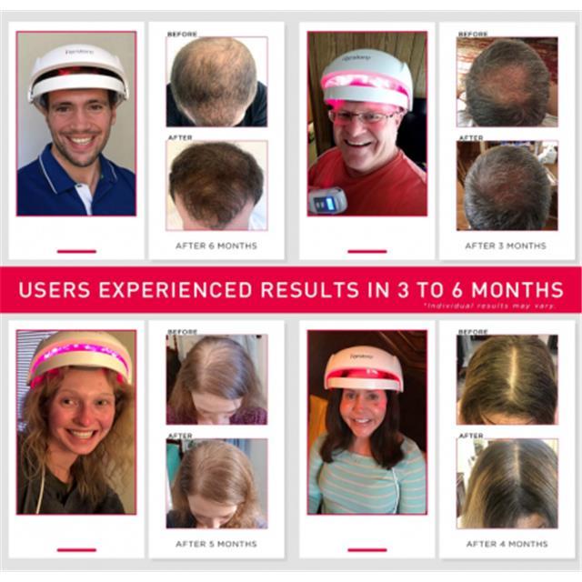 irestore-laser-hair-restoration-device-is-200-off-fda-certified-2021-7-27